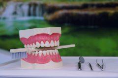 Zahnbürste-Zahnarztpraxis-Rapp-scaled